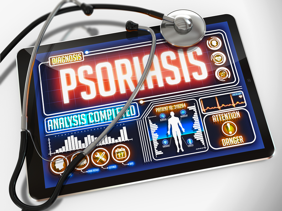 Psoriasis-Perdida-Masa-Osea