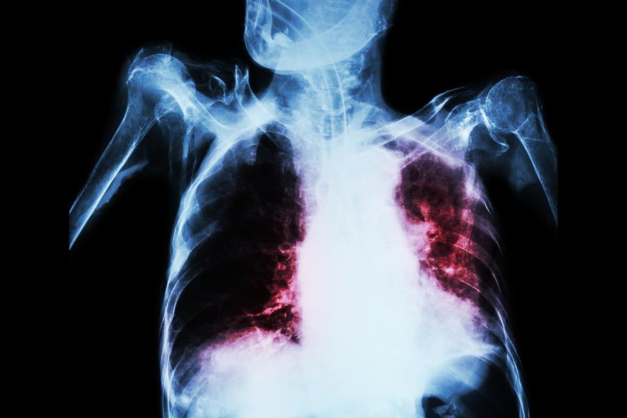 Tuberculosis-Test-Orina-LAM
