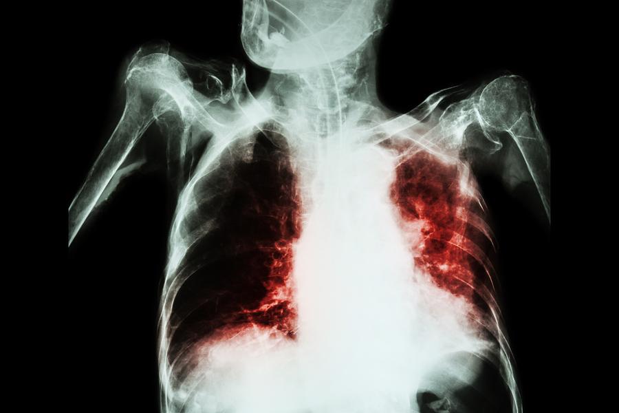 Tuberculosis-Multirresistente