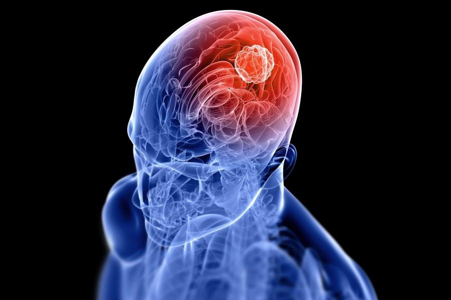 Cancer-Cerebral-Tumor-Cerebro
