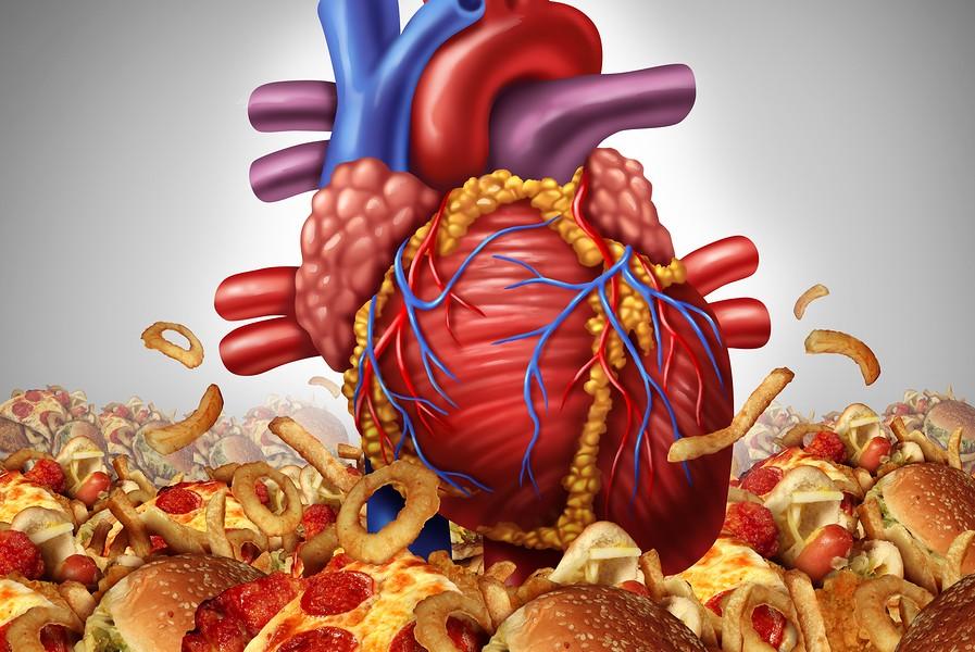 Insuficiencia-Cardiaca-Sobrepeso-Obesidad