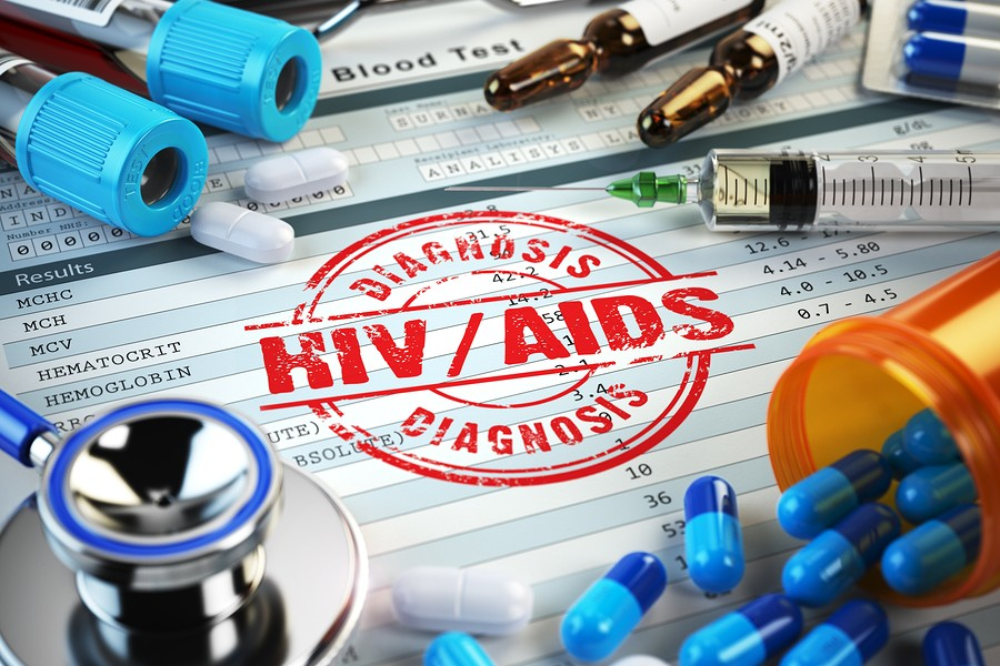VIH-Sida-HIV-AIDS-Diagnostico