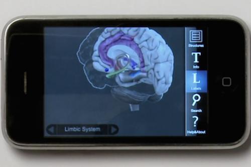 3D-Brain-Fisiologia-Lesiones-Cerebrales