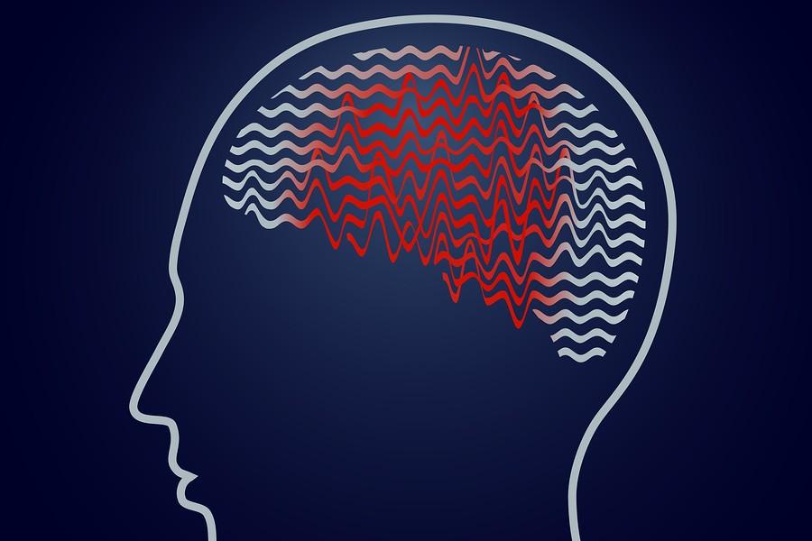 Epilepsia-Ataque-Epileptico