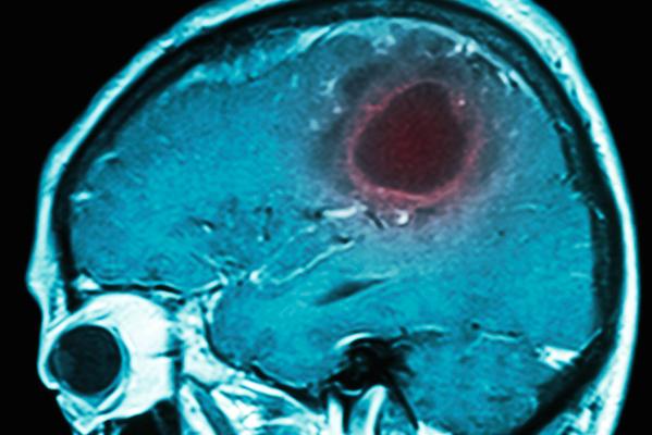 Tumores-Cerebrales-Cerebro-Estudios-Imagen