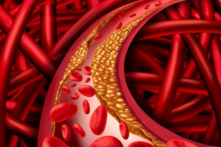 Aterosclerosis-Ateromas