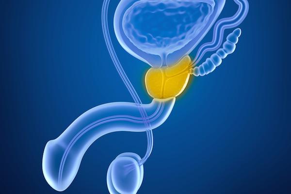 tratamientos prometedores para el cáncer de próstata