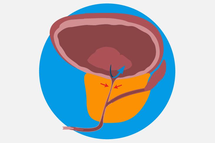 Adenocarcinoma de próstata grado 2020
