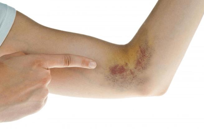 6 cách làm tan máu bầm nhanh chóng và hiệu quả