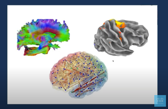 3 different imaging of brains with Dr. Don Vaughn