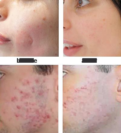 Acne Scar Treatment, Refitol acne scar cream