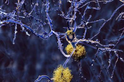 New Alzheimer's drug could be a game changer... maybe...