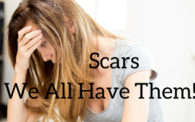 Scars- We All Have Them!  January 15, 2017