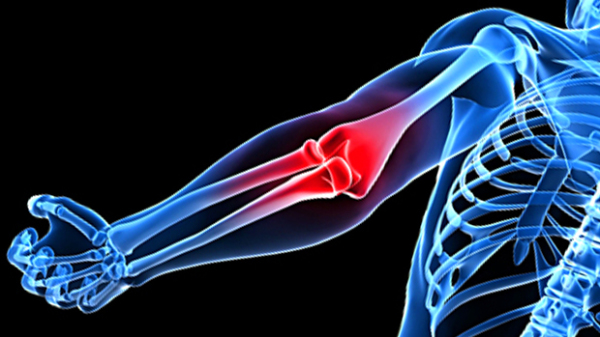Lifter's Elbow: The Cause & The Cure