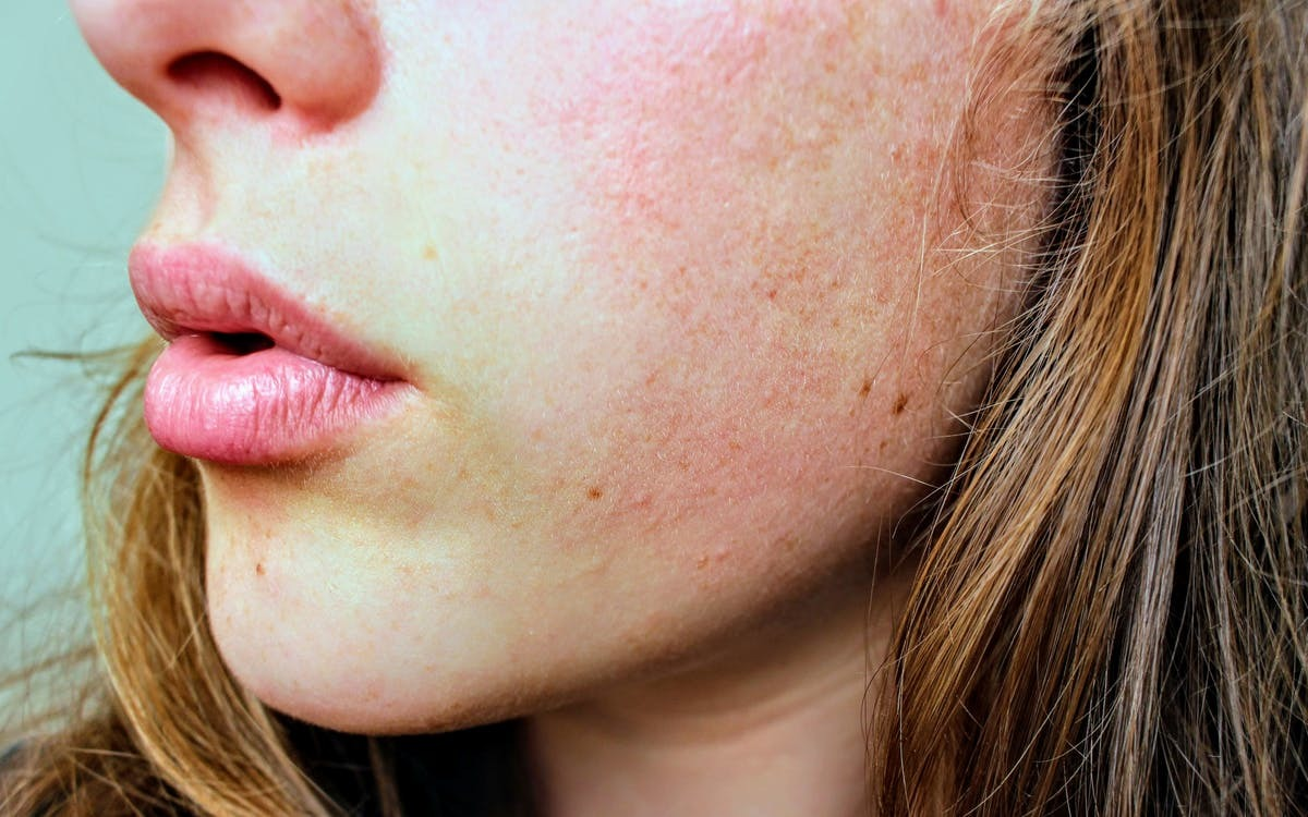 Master an Anti-Pollution Skincare Routine