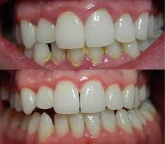 before and after removal of tartar deposits from bleeding gums