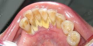 Deposits on teeth leading to gum disease