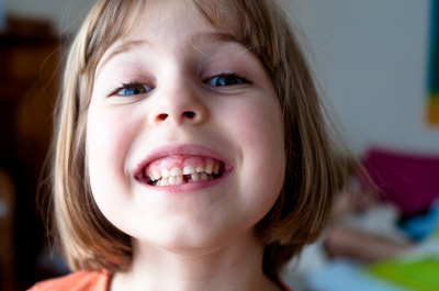 girl with milk teeth smiling