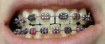 braces for spaces in teeth
