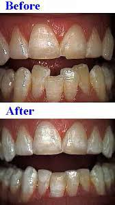 repair of chipped tooth