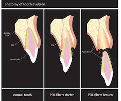 trauma causing tooth to fall out