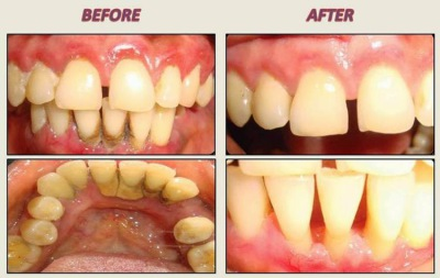 before and after dental