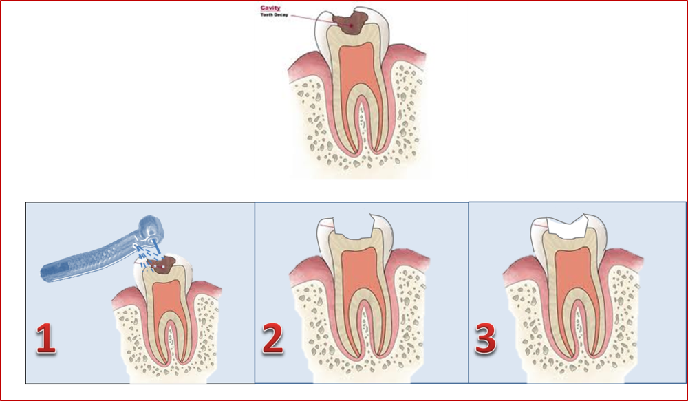 how is dental cavity filled