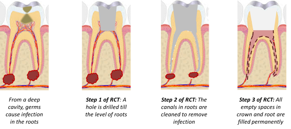 steps of root canal treatment