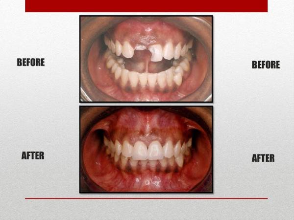 before and after buildup of broken tooth
