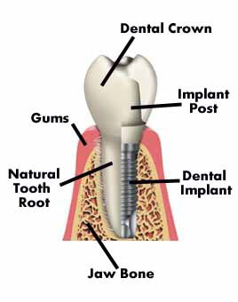 comparison of tooth root and implant