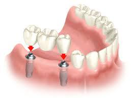 dental crown and bridge on implants