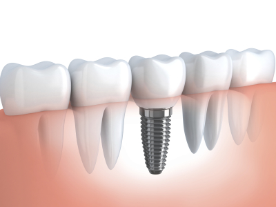 tooth implant in bone