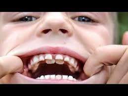 retained milk teeth