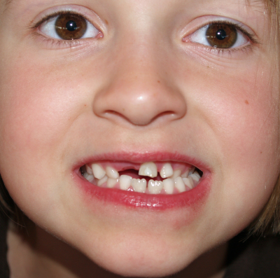 baby teeth fallen out