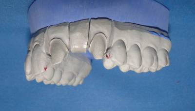 dental model with teeth prepared for crown and bridge