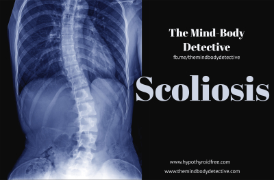 The Mind Body Detective - Scoliosis