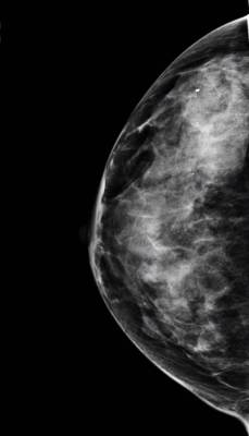 Leicester Breast Clinic mammogram