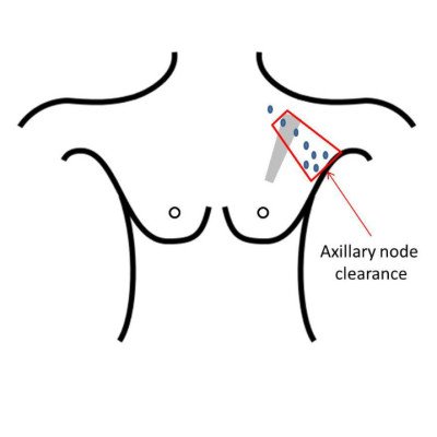 Breast Care Leicester: level 2 axillary node clearance