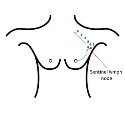 Breast care Leicester: sentinel lymph node biopsy