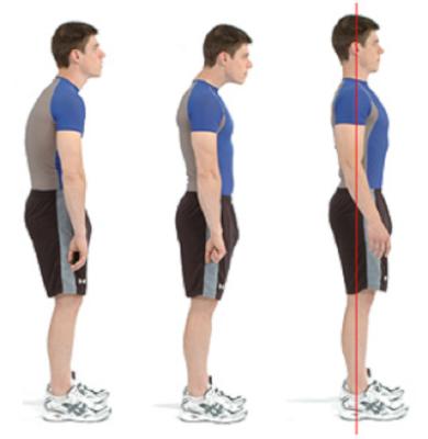 """<img alt=""""postural dysfunction"""">"""