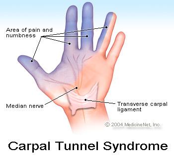 "<img alt=""carpal tunnel"">"