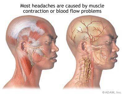 "<img alt=""headache"">"