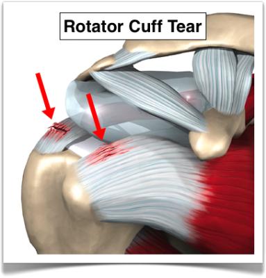 "<img alt=""rotator cuff strain"">"
