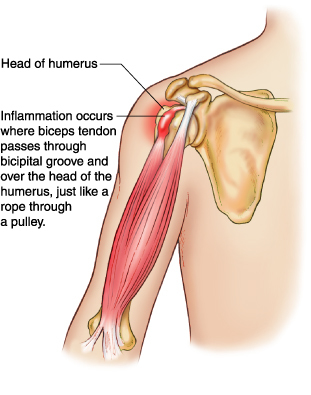 "<img alt=""bicep tendonitis"">"