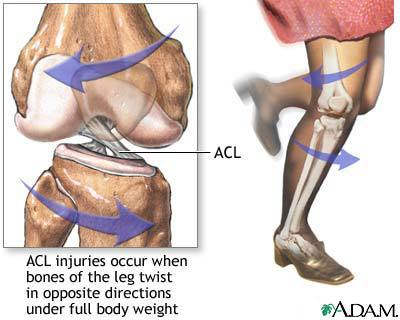 "<img alt=""ACL injury"">"