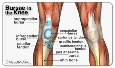 """<img alt=""""knee bursitis"""">"""