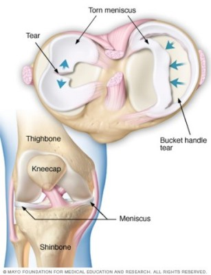 """<img alt=""""torn meniscus"""">"""
