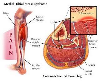 "<img alt=""Medial Tibial Stress Syndrome"">"