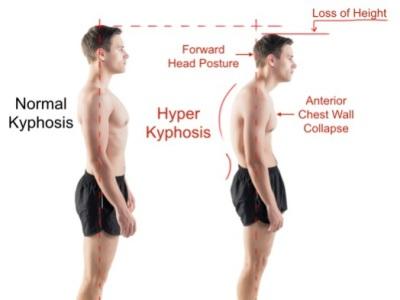 "<img alt=""thoraocic kyphosis"">"