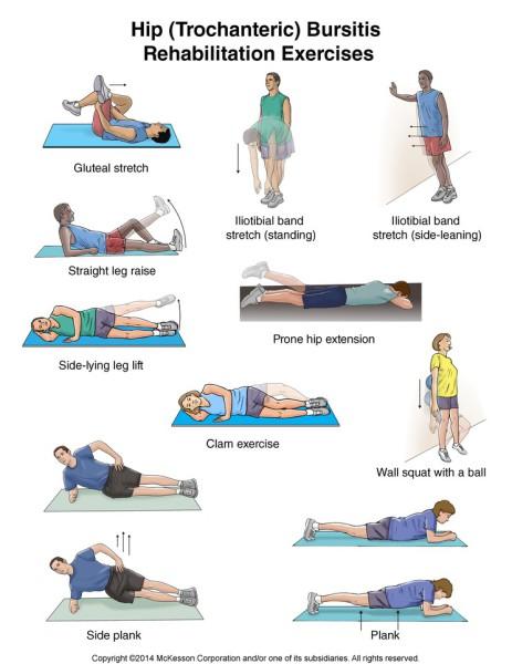 "<img alt=""hip trochanter bursitis corrective exercise"">"